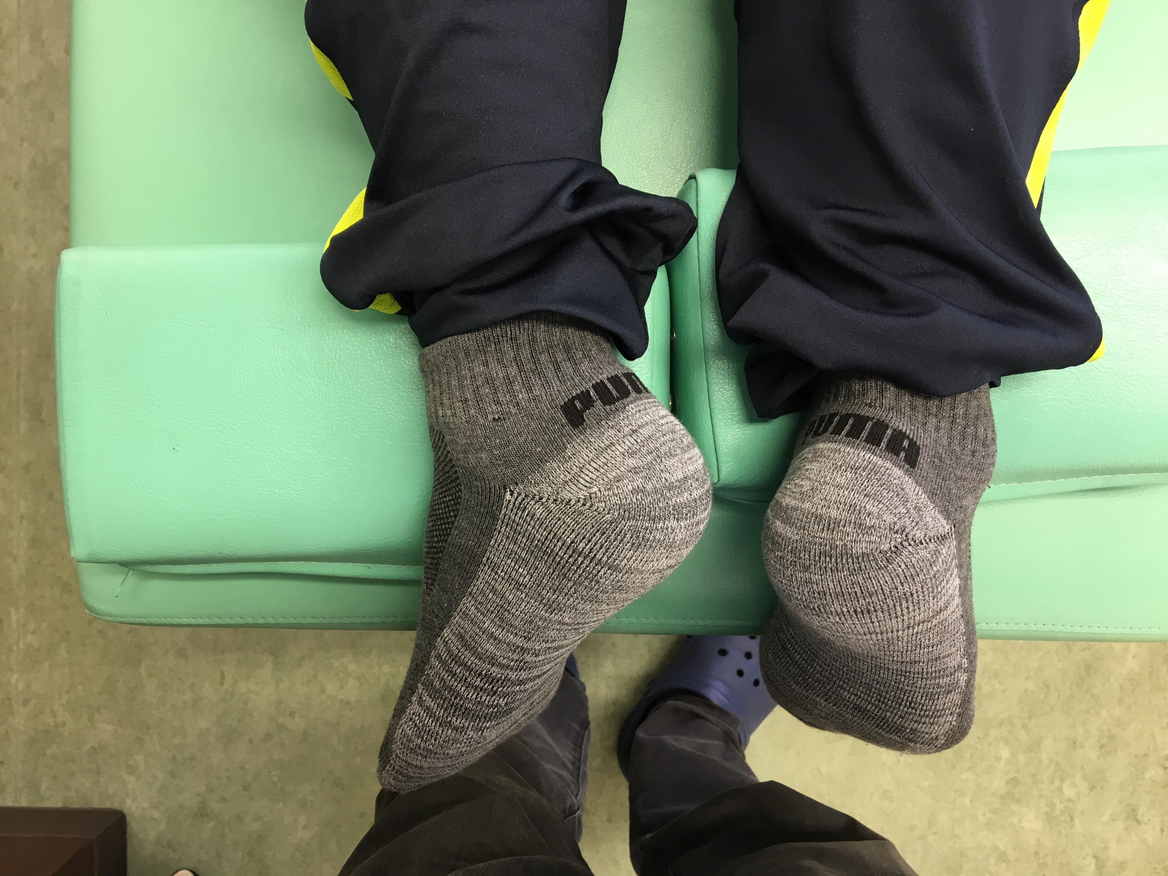 腰痛の出る姿勢・歪みパターン:典型的例(骨盤矯正・整体) 名古屋市東区 天仁接骨院